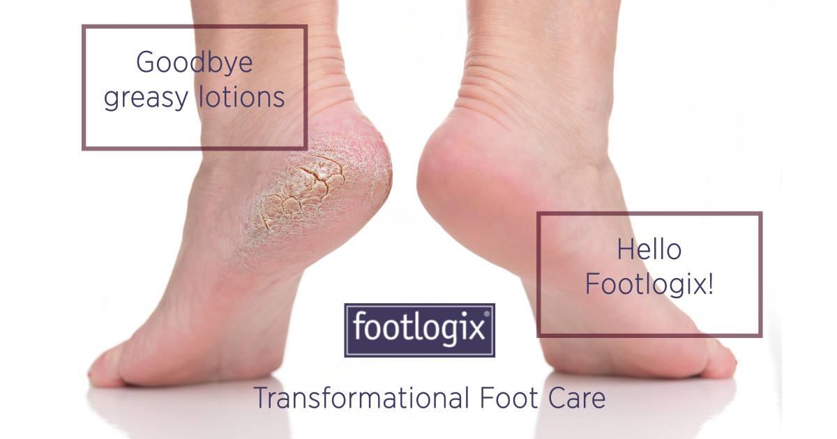 nieuwe-voetbehandeling-footlogix